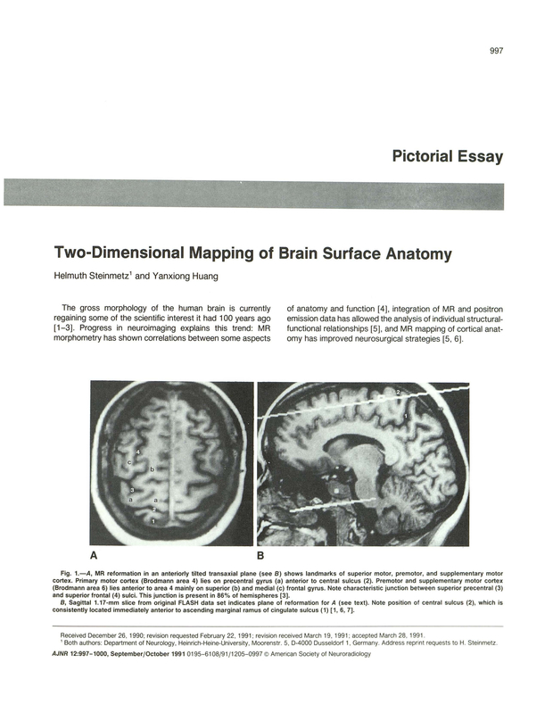 Two Dimensional Mapping Of Brain Surface Anatomy American Journal