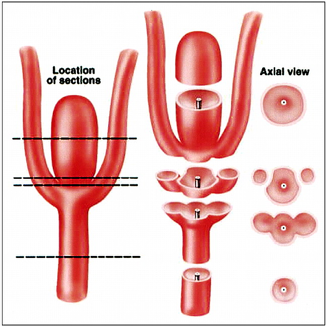 definition of the ostium (neck) of an aneurysm revealed by, Human Body