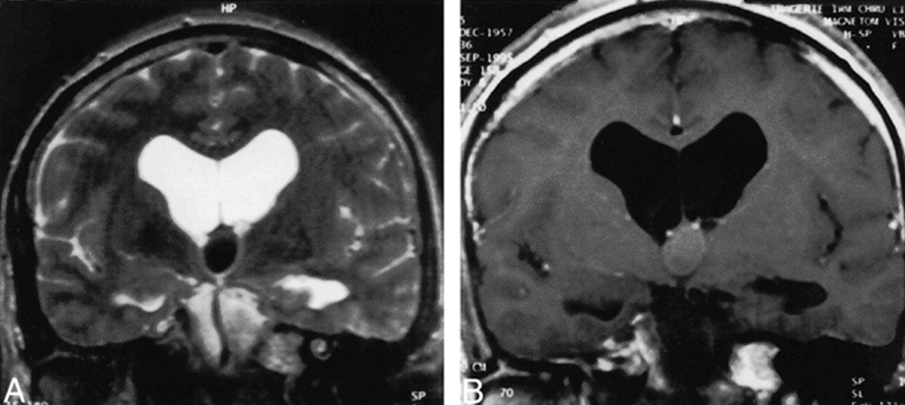 colloid cysts of the third ventricle  are mr imaging patterns predictive of difficulty with