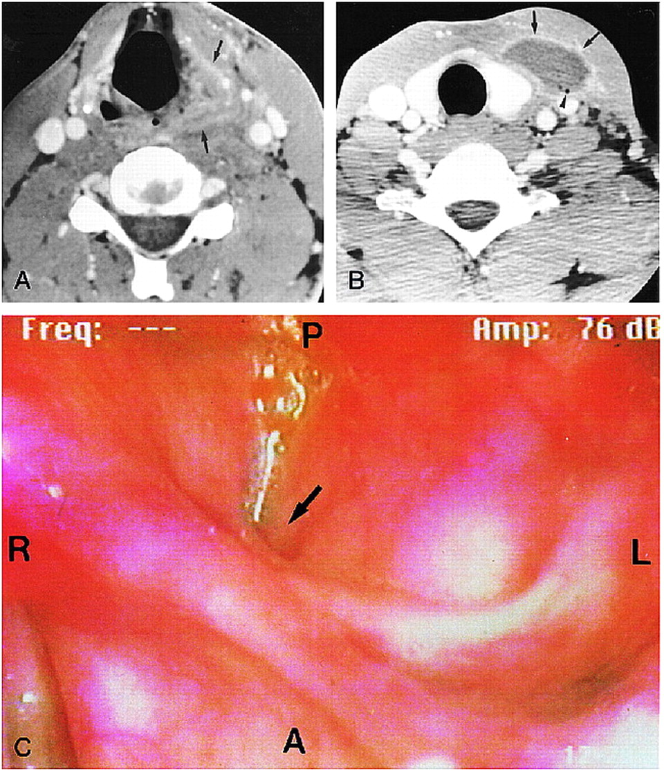 Neck Infection Associated with Pyriform Sinus Fistula: Imaging ...
