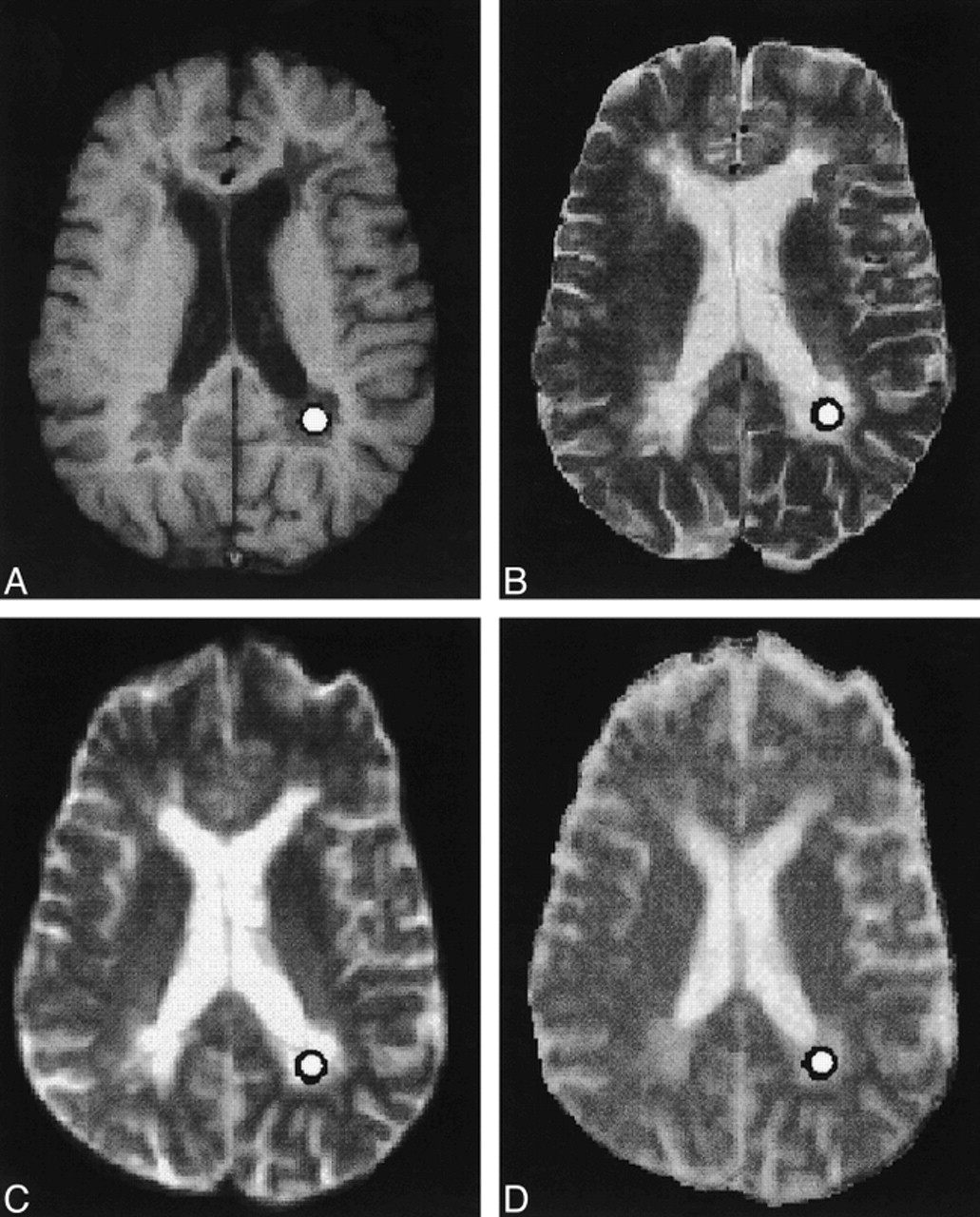 demyelinating plaques in relapsing remitting and secondary