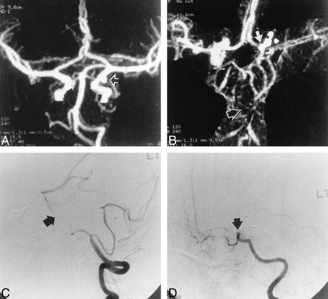 CT Angiography for the Detection of Cerebral Vasospasm in