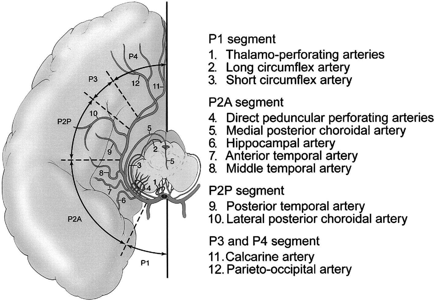 Aneurysms Of The Posterior Cerebral Artery Classification And