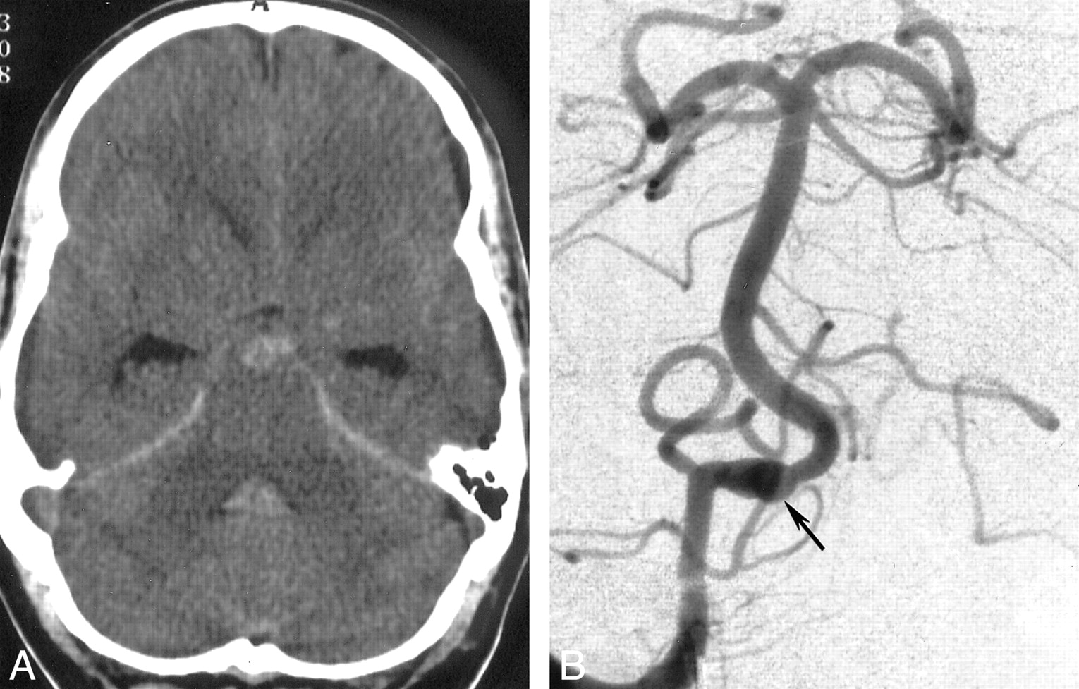 Treatment Of A Ruptured Dissecting Vertebral Artery Aneurysm With