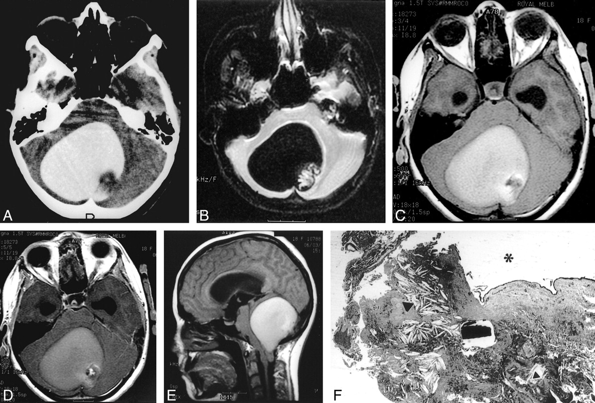 Unusual imaging appearance of an intracranial dermoid cyst for Cystic lesion with mural nodule