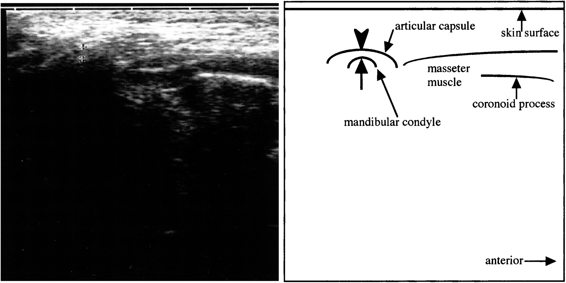 The Accuracy Of Sonography For Evaluation Of Internal