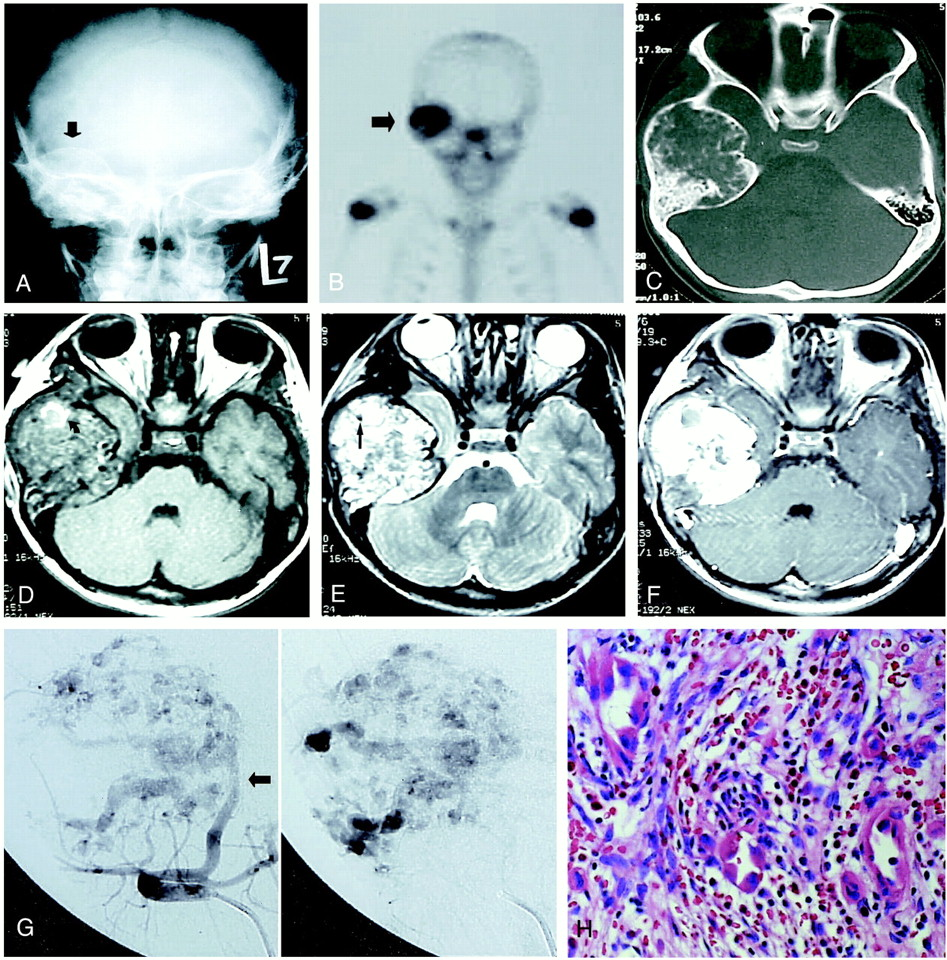 hemangioendothelioma of the temporal bone with radiologic findings, Human Body