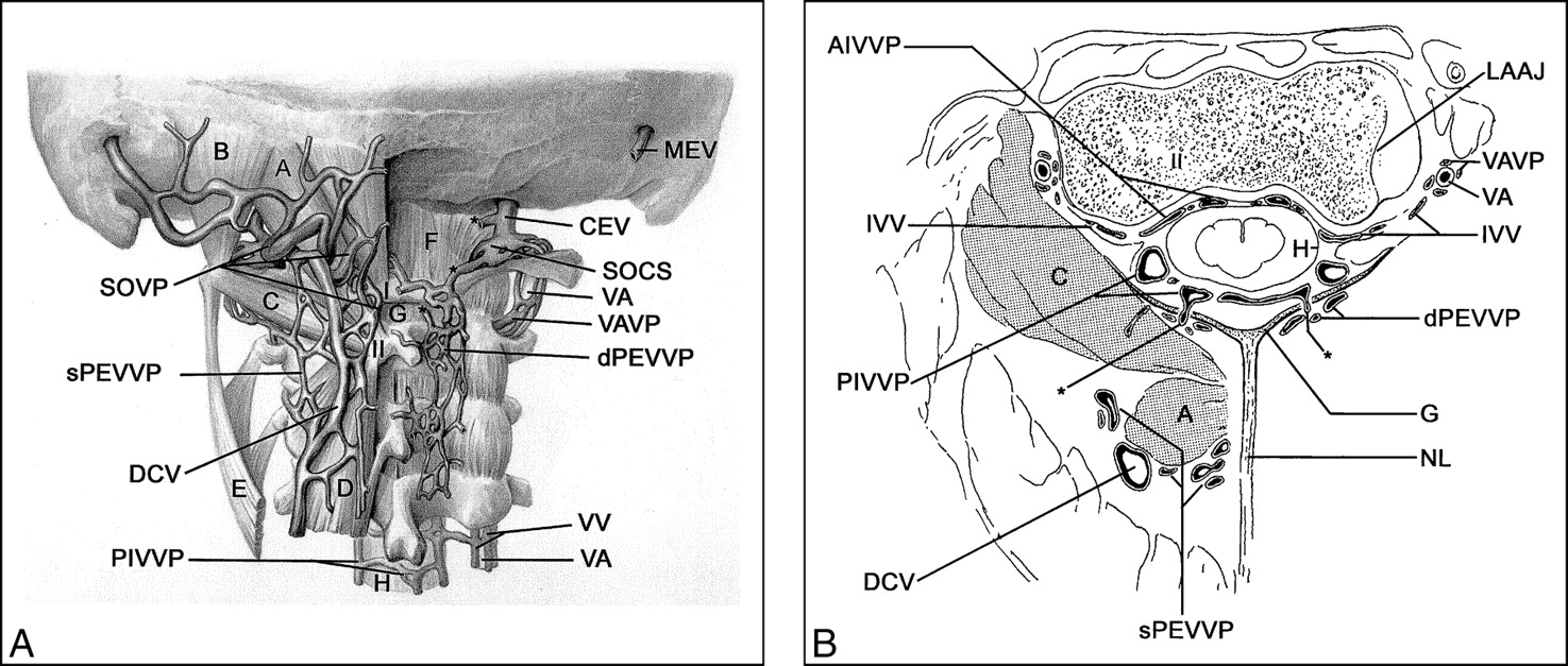 Fig 4 Cervical Mr Imaging In Postural Headache Mr Signs And