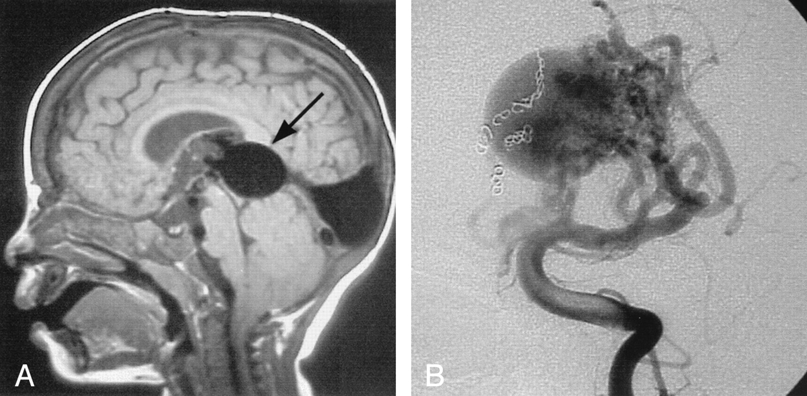 Vein of Galen Aneurysmal Malformation: Diagnosis and Treatment of 13 ...