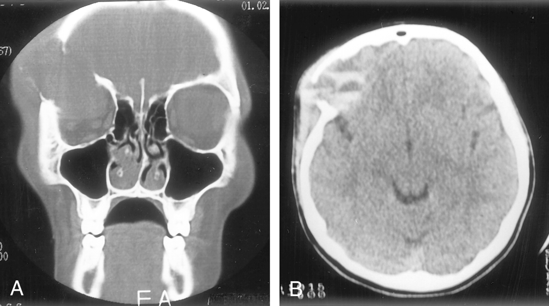 aneurysmal bone cyst of the orbit | american journal of neuroradiology, Human Body