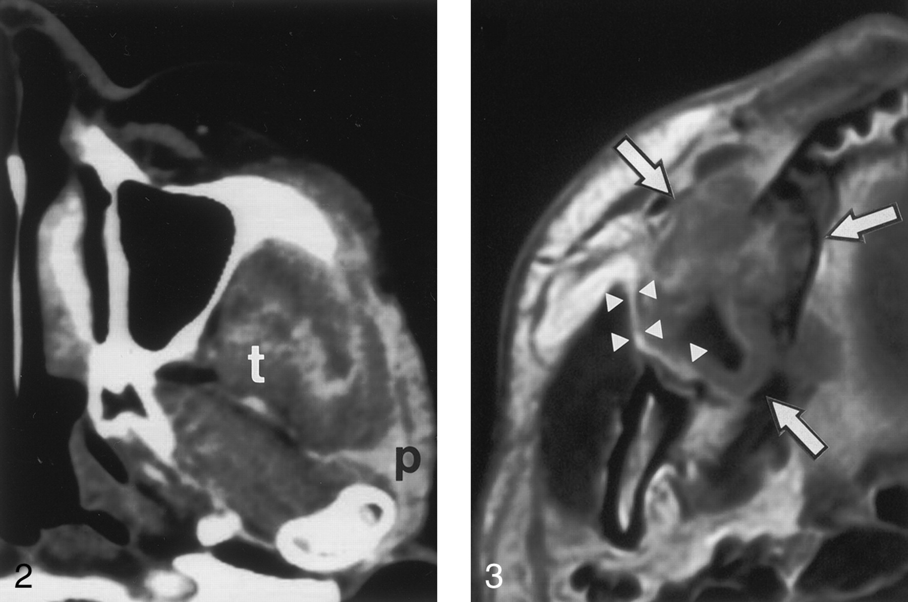 Deep Extension from Carcinoma Arising from the Gingiva: CT and MR