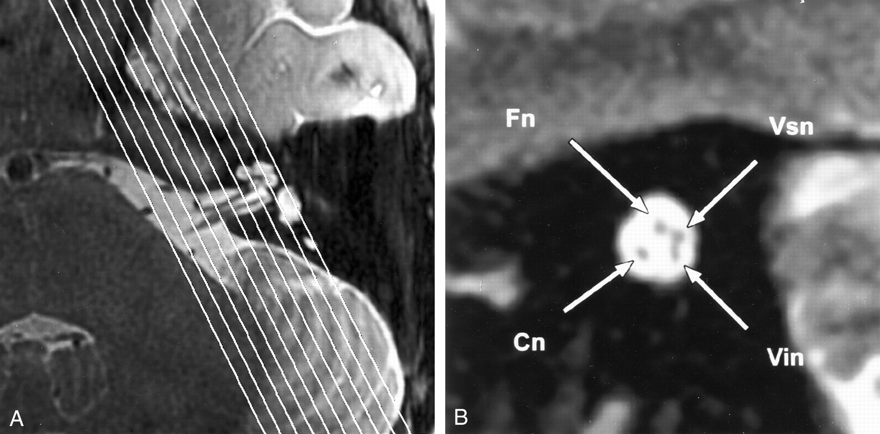imaging findings of cochlear nerve deficiency american