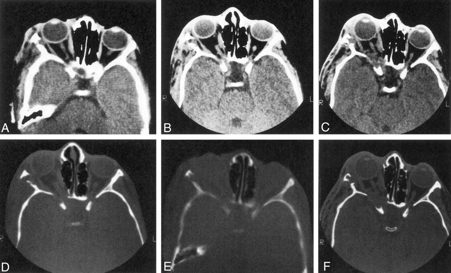 fig 7. | reassessment of sphenoid dysplasia associated with, Human body