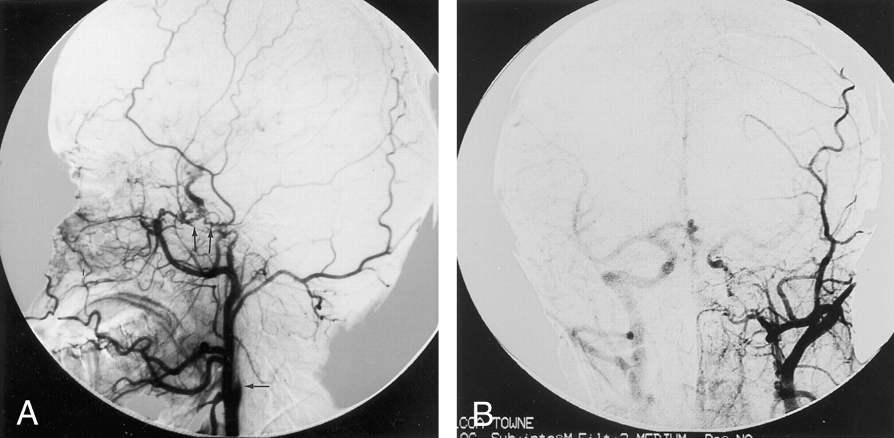 Agenesis Of The Internal Carotid Artery Associated With Aortic Arch