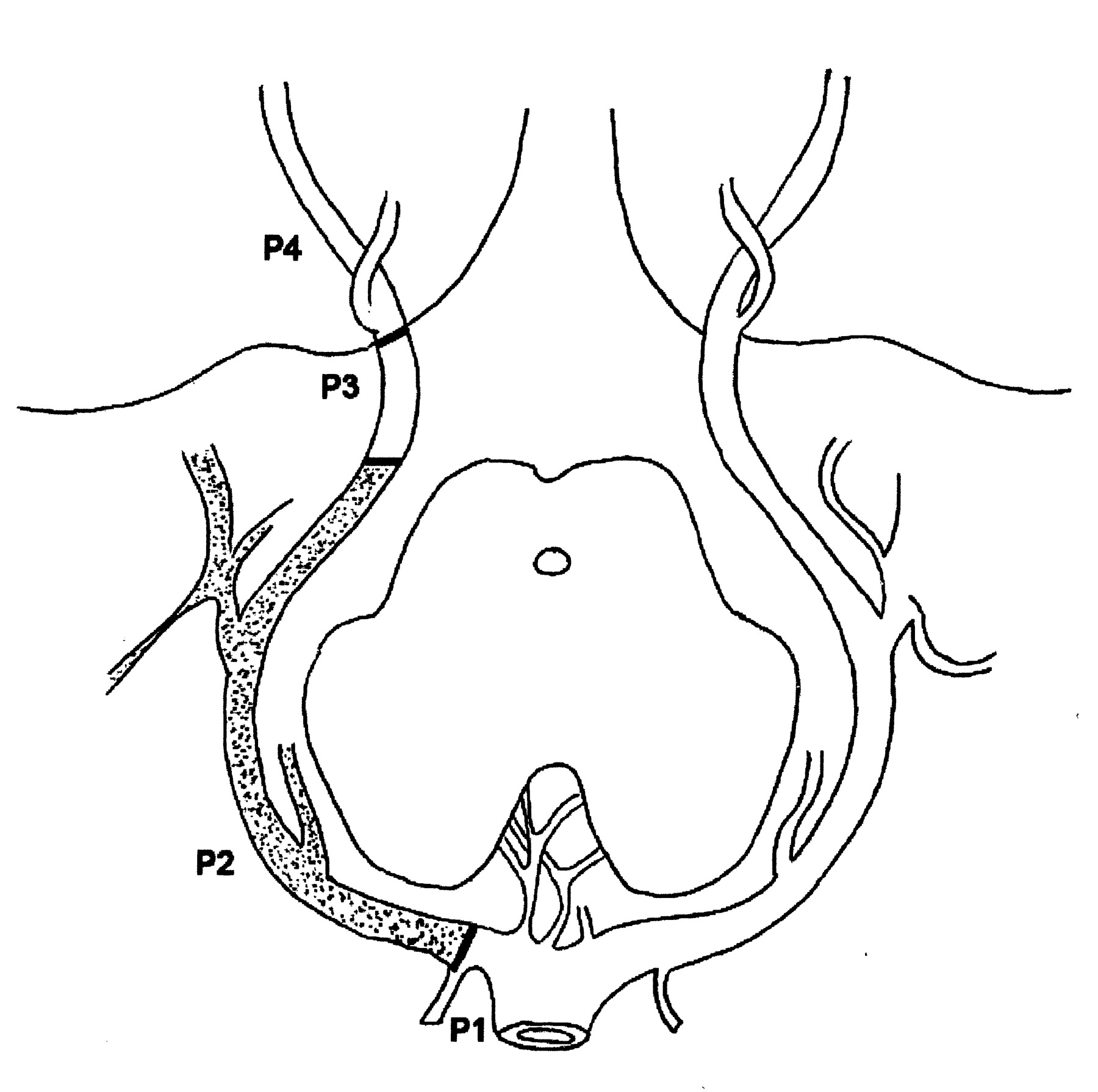 Endovascular Occlusion of the Posterior Cerebral Artery for the ...