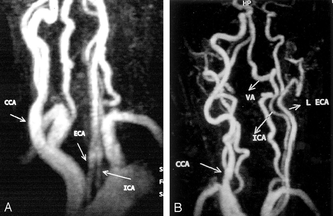 Separate Origins Of The Left Internal And External Carotid Arteries
