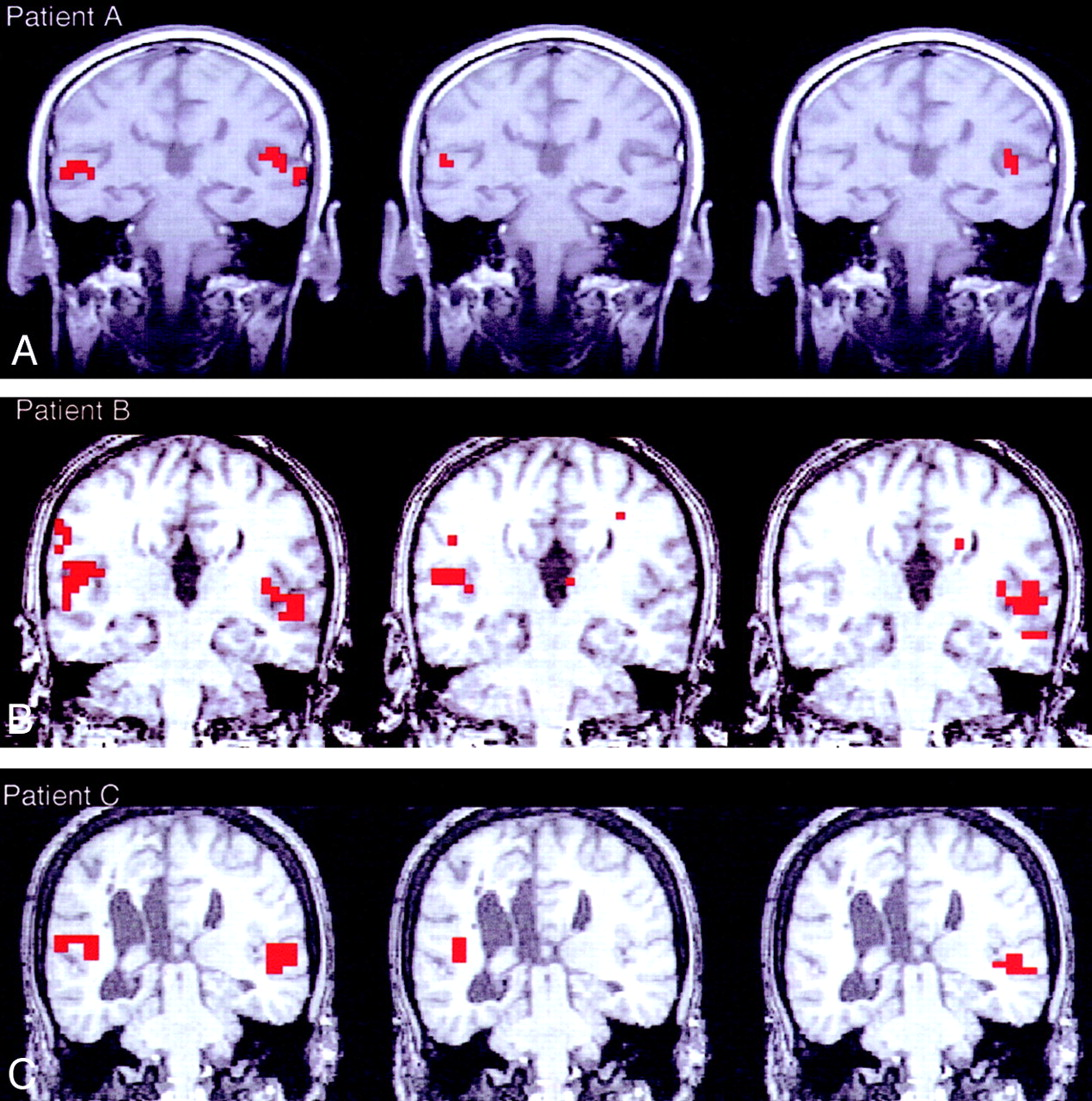 Role Of The Corpus Callosum In Functional Connectivity American