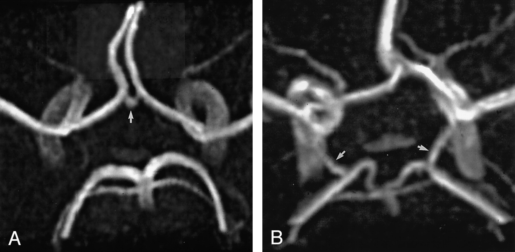 Assessment Of The Collateral Function Of The Circle Of Willis
