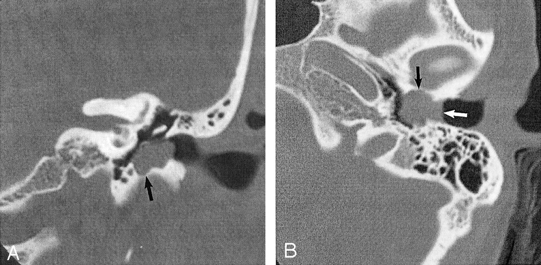 External Auditory Canal Cholesteatoma Clinical And