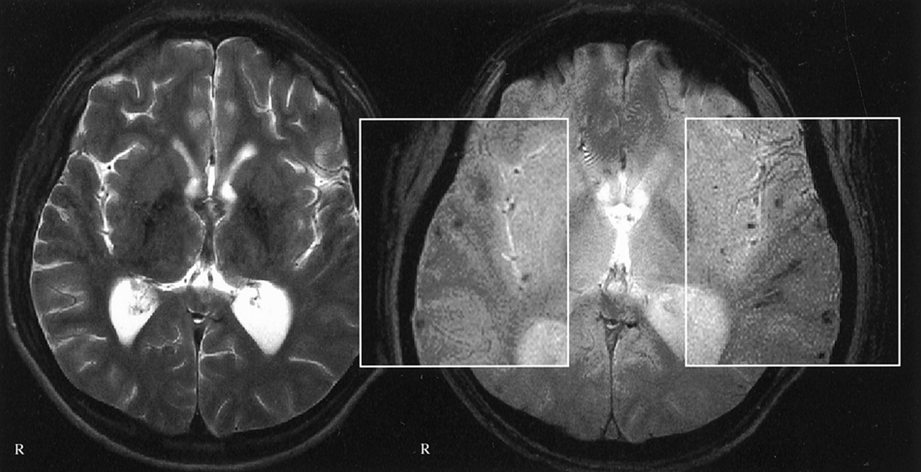Diffuse Axonal Injury Associated with Chronic Traumatic ...
