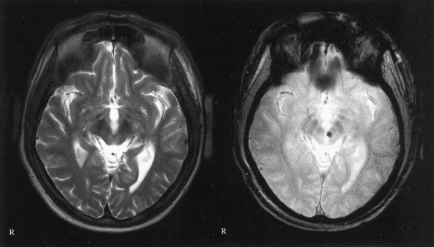 Diffuse Axonal Injury Associated With Chronic Traumatic
