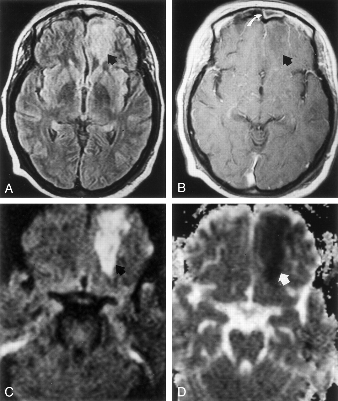 Diffusion Weighted Imaging Of Cerebritis