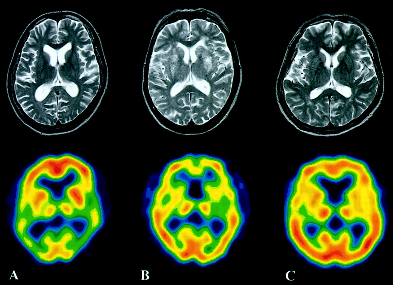 alzheimer's and vascular dementia Besides alzheimer's, vascular dementia is the second most common form of dementia this form of dementia is caused by abnormal blood flow to the brain, causing significant impairments.
