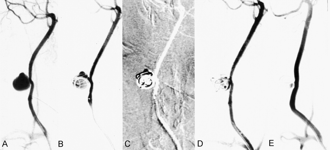 Technical Feasibility of Embolizing Aneurysms with Glue (n