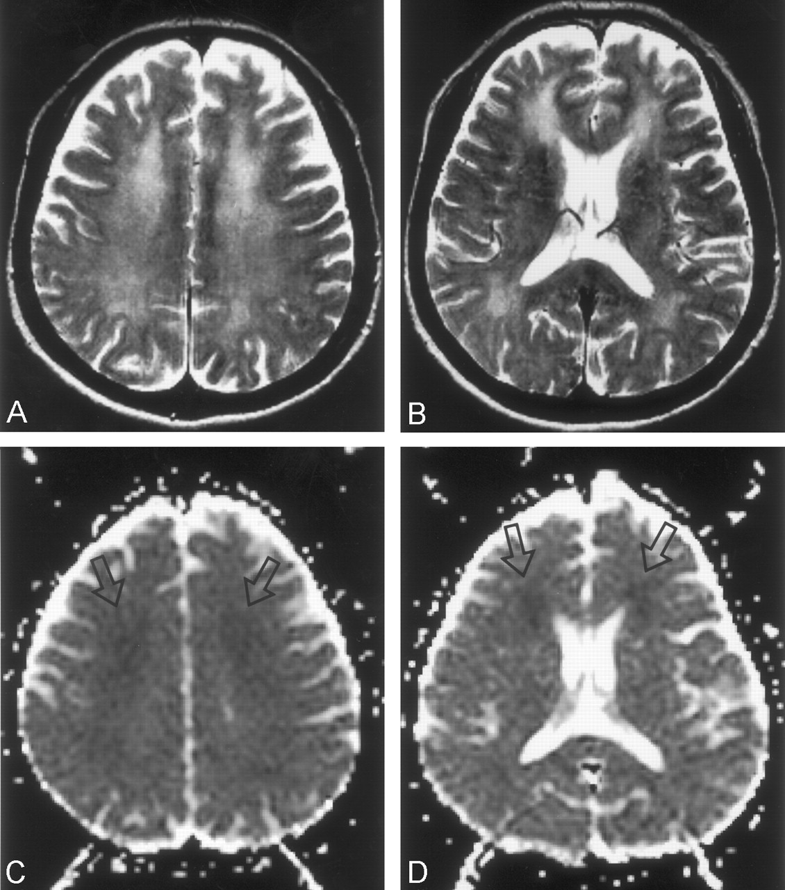 Delayed Encephalopathy Of Acute Carbon Monoxide Intoxication