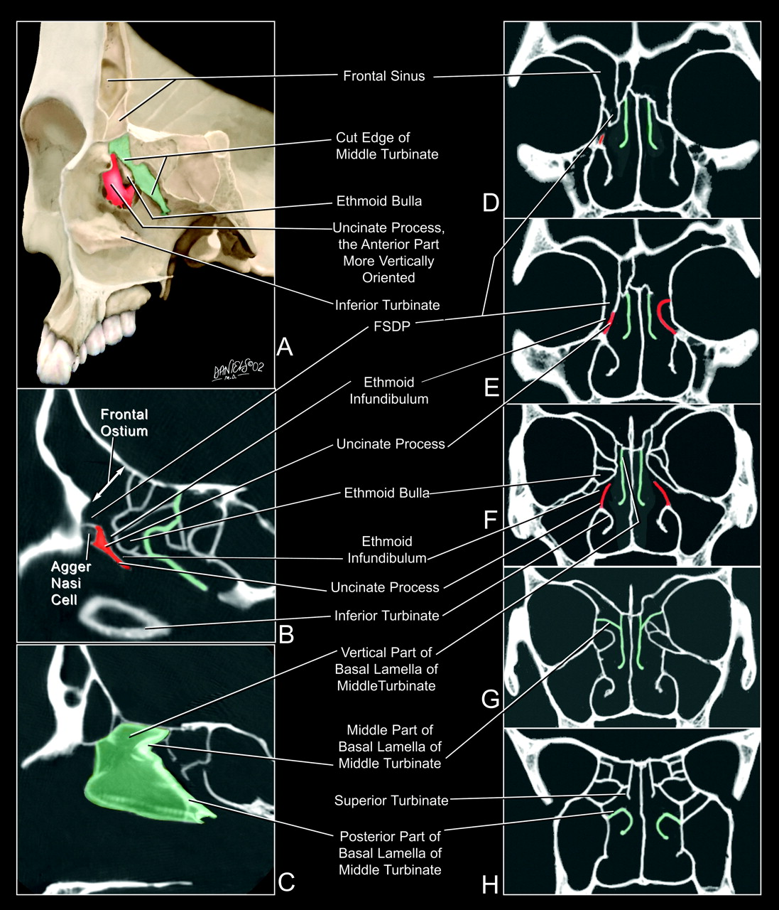 The Frontal Sinus Drainage Pathway and Related Structures ...  Ethmoid
