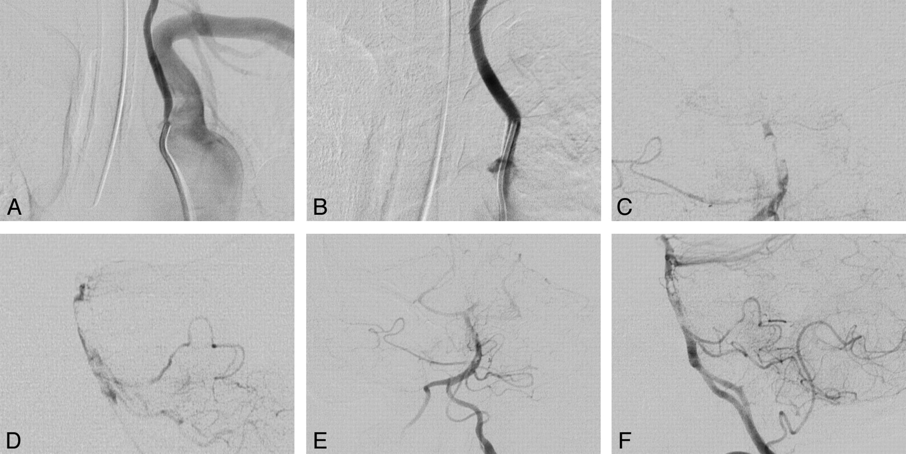 Combined Stent Placement and Thrombolysis in Acute