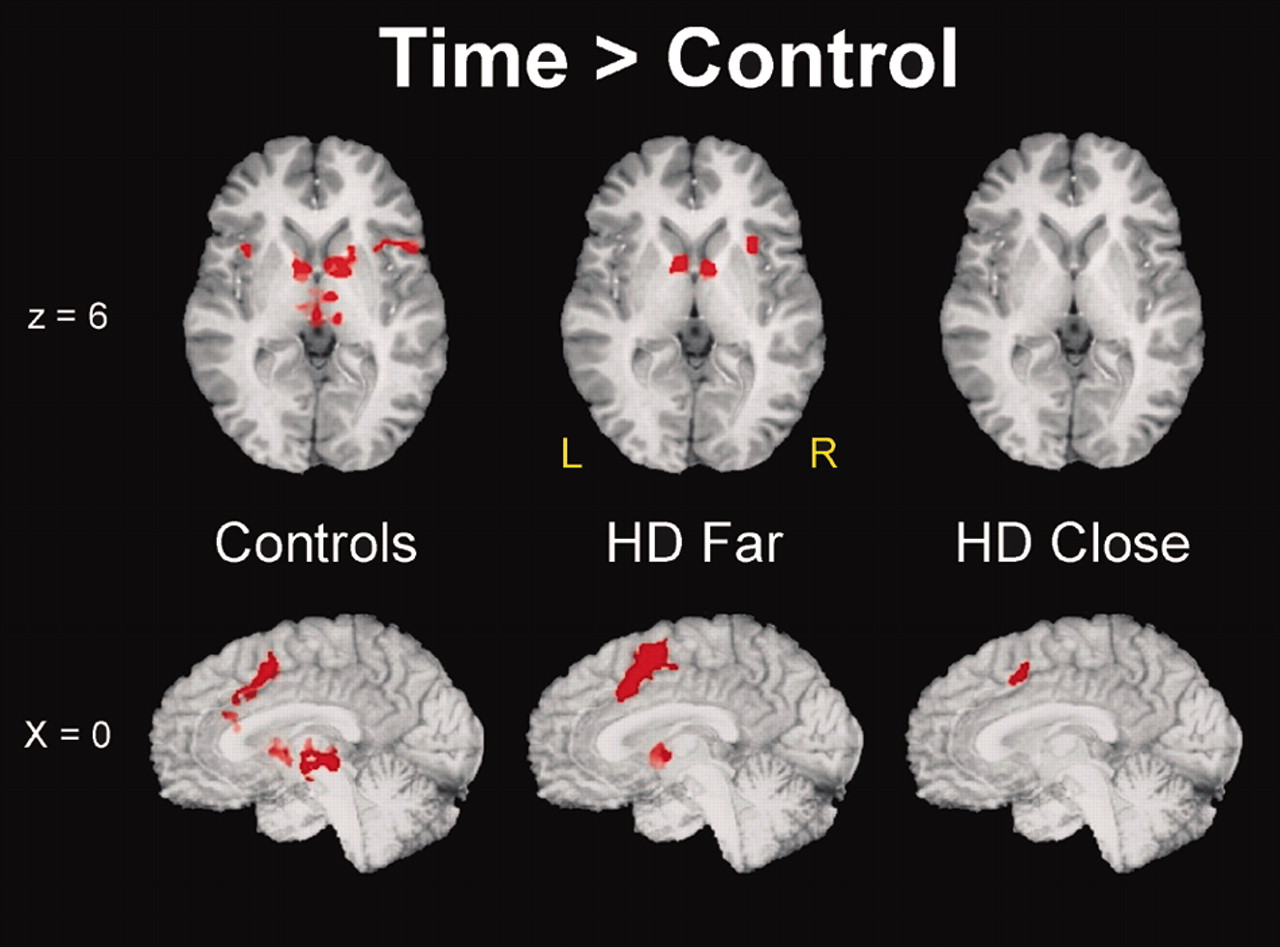 Fmri Biomarker Of Early Neuronal Dysfunction In Presymptomatic Huntington S Disease American Journal Of Neuroradiology