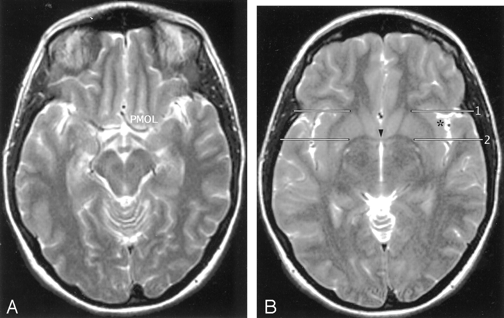 The Insula: Anatomic Study and MR Imaging Display at 1.5 T ...