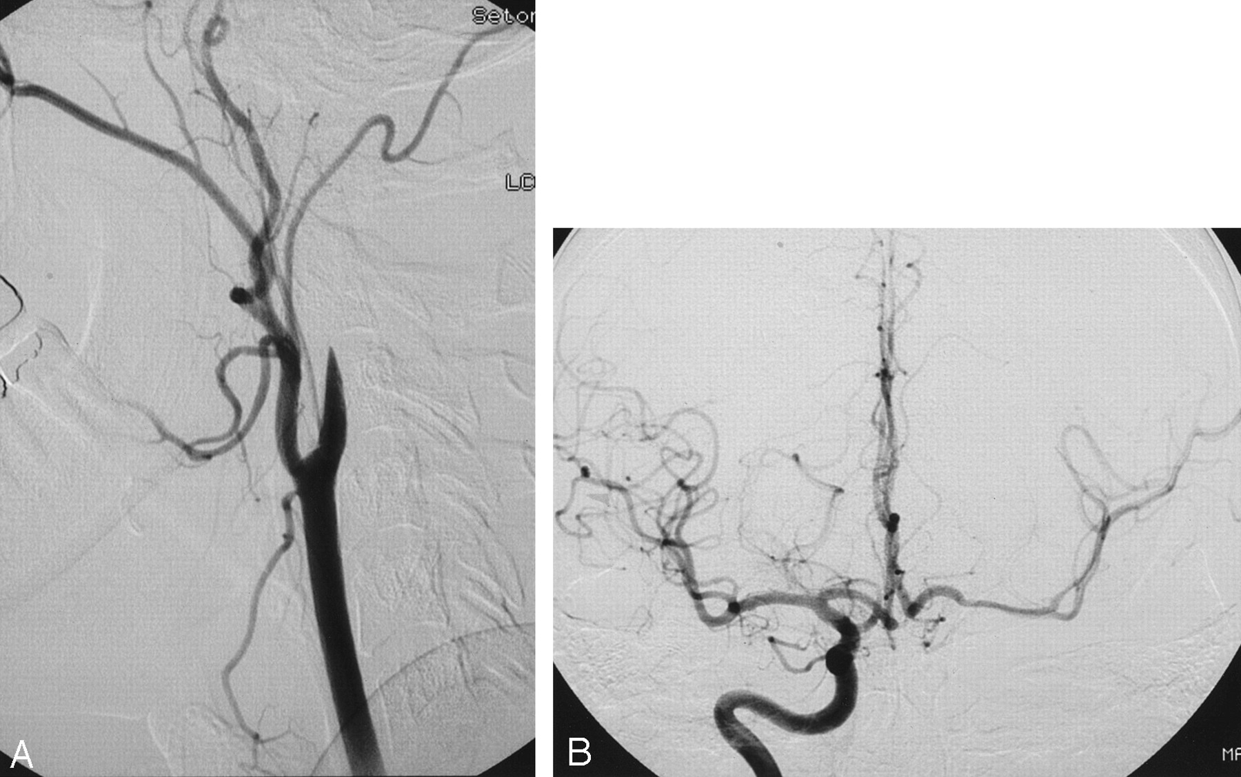 Assessment of Patients' Satisfaction in Carotid Surgery ...
