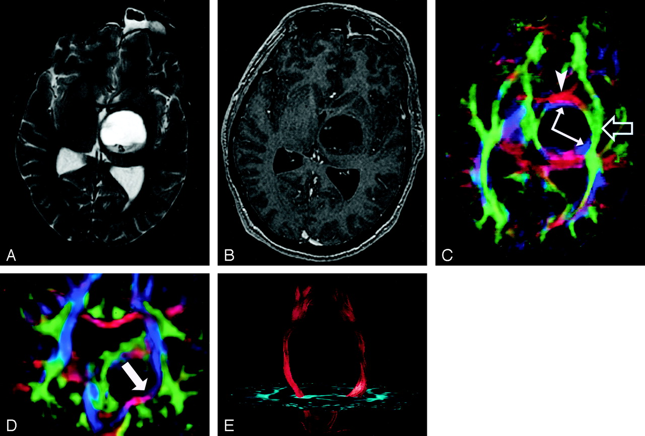 Diffusion Tensor Imaging Of Cerebral White Matter A Pictorial