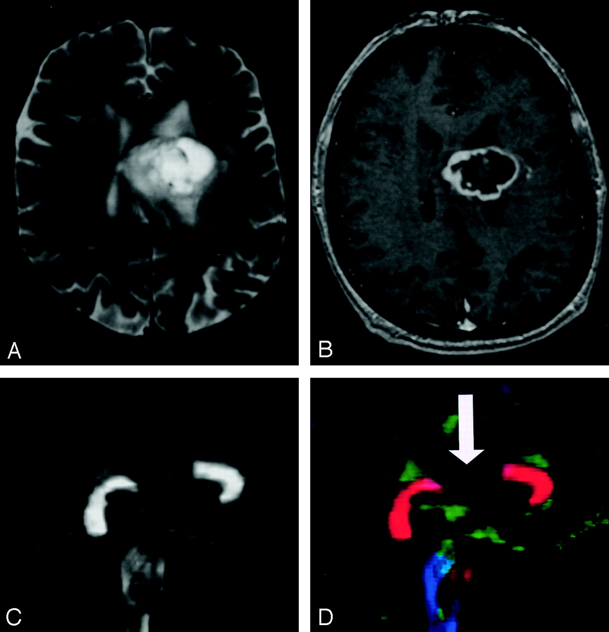 Diffusion Tensor Imaging of Cerebral White Matter: A Pictorial ...