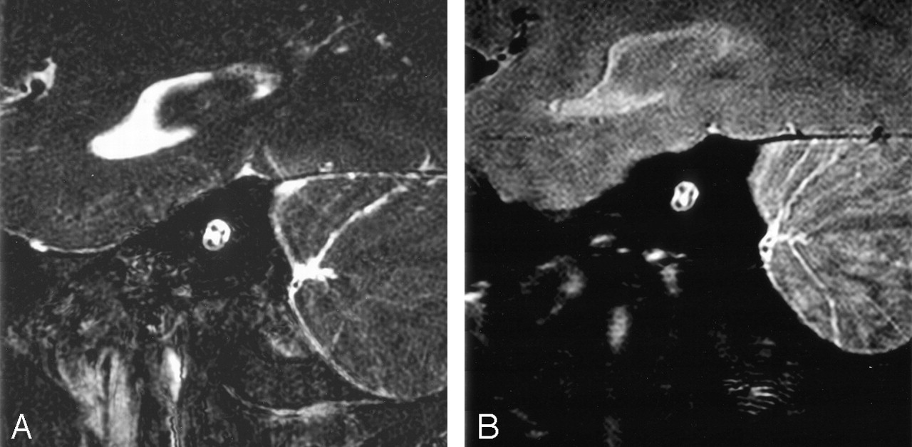 3-T Imaging of the Cochlear Nerve and Labyrinth in Cochlear-Implant ...