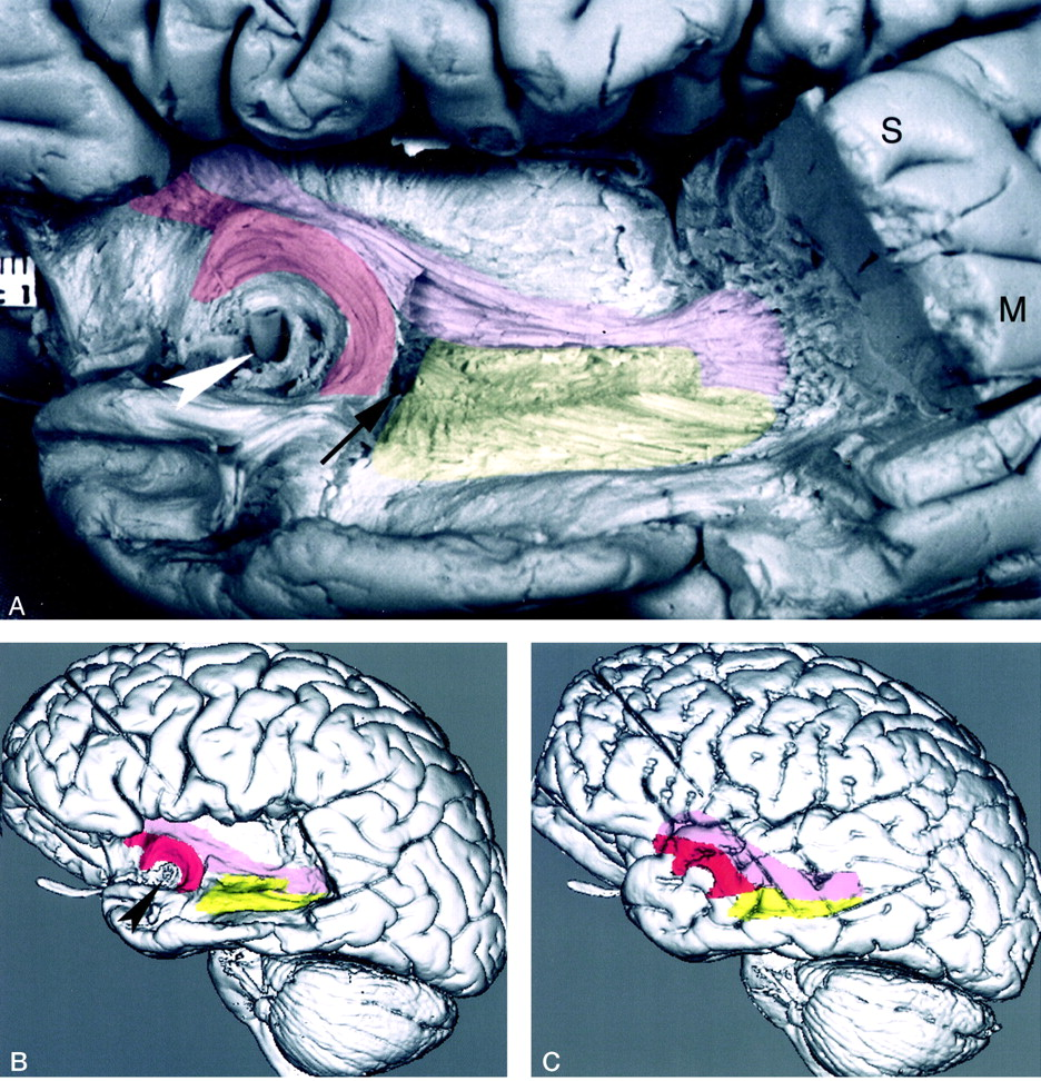 Mr Imaging Of The Temporal Stem Anatomic Dissection Tractography Of