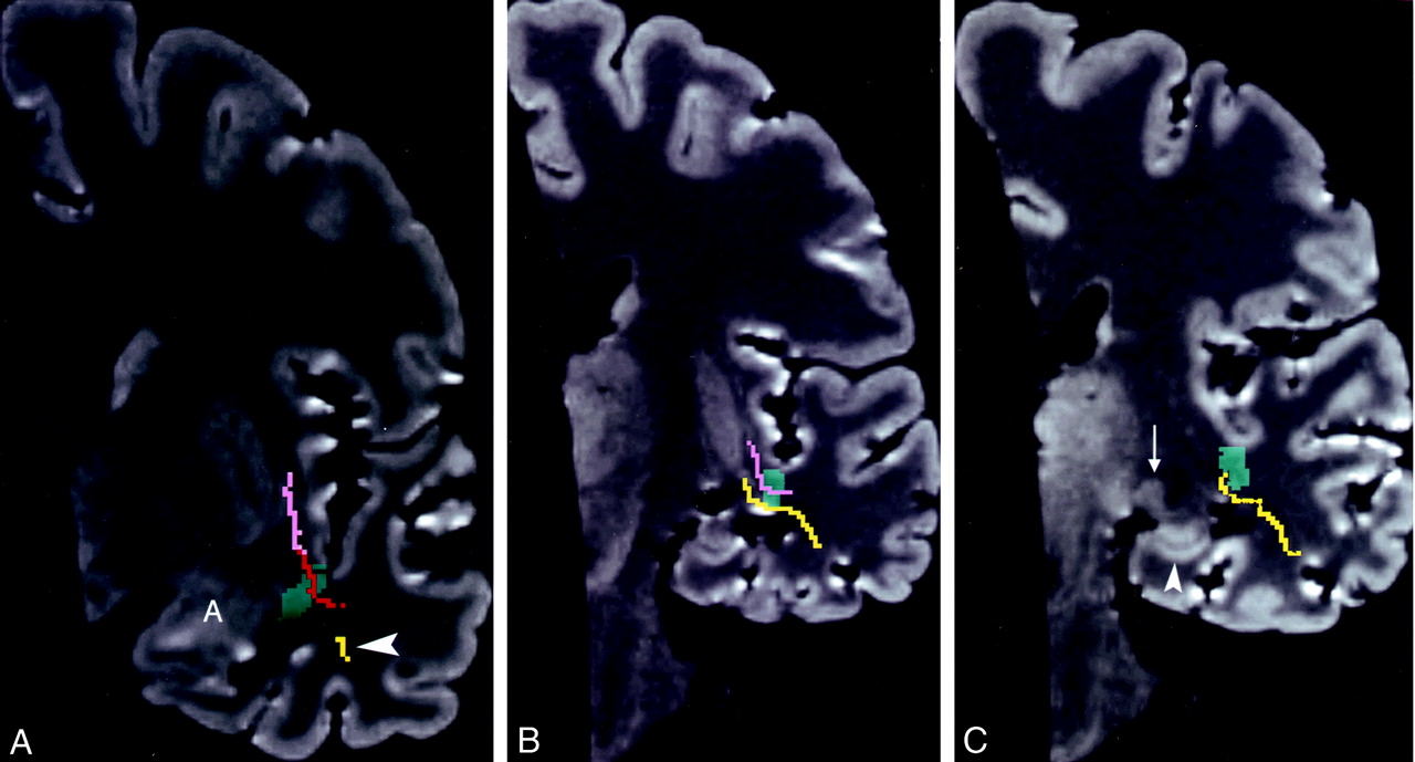MR Imaging of the Temporal Stem: Anatomic Dissection Tractography of ...