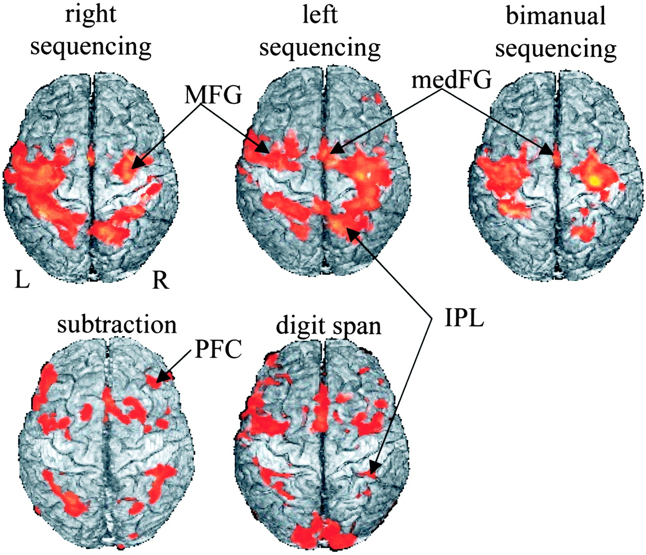 A Prospective Functional MR Imaging Study of Mild Traumatic Brain ...