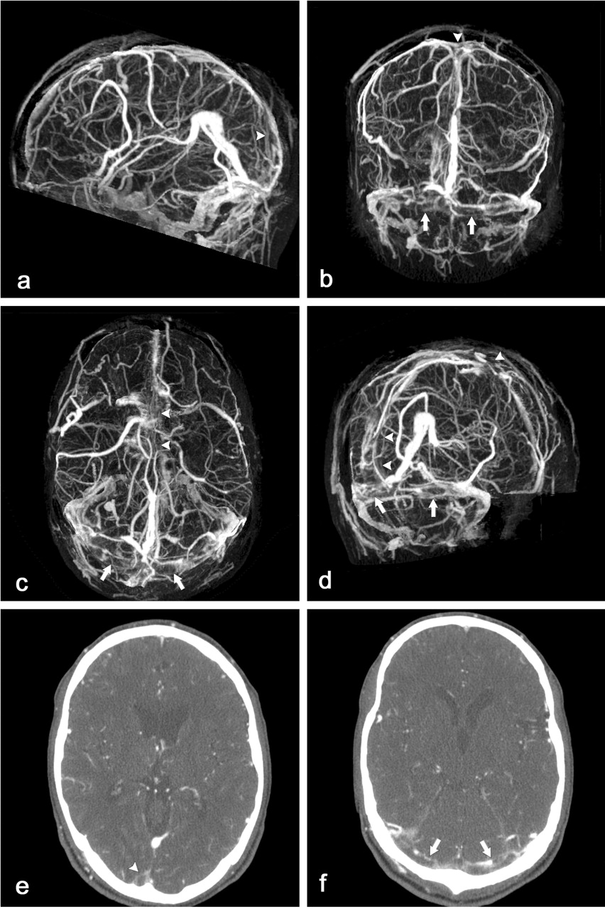 Multisection Ct Venography Of The Dural Sinuses And Cerebral Veins