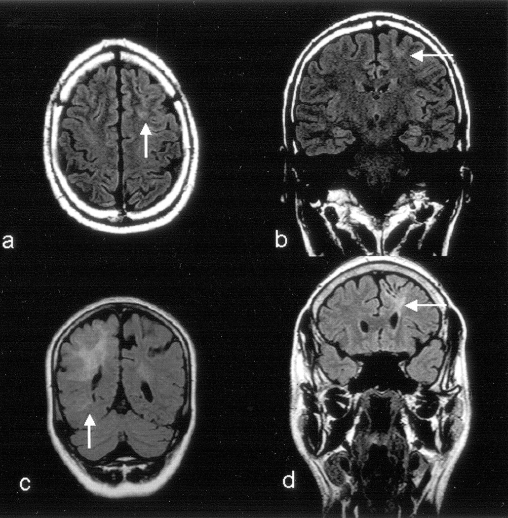 MR Imaging in the Presurgical Workup of Patients with Drug ...
