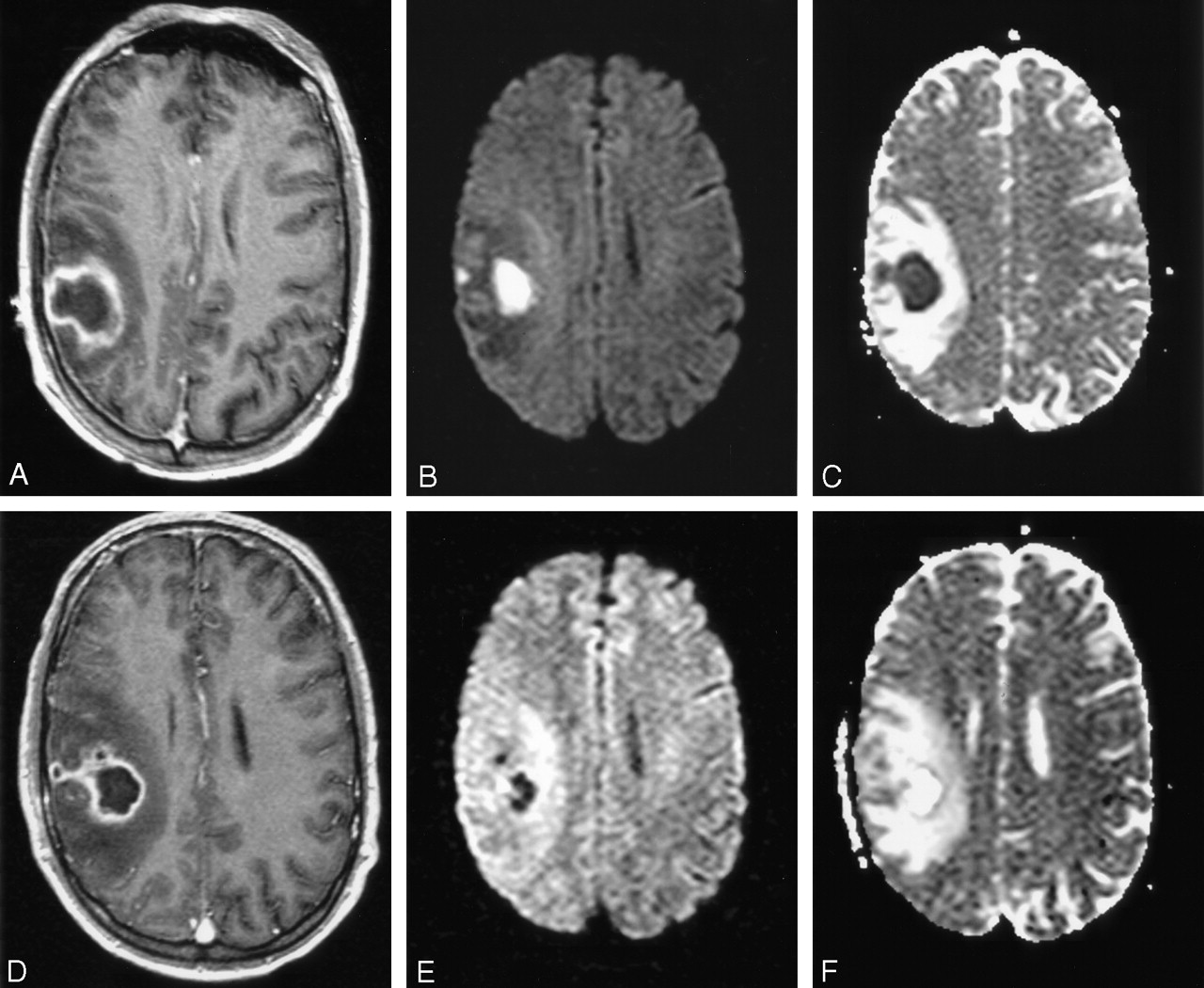 diffusion weighted imaging in the assessment of brain abscesses