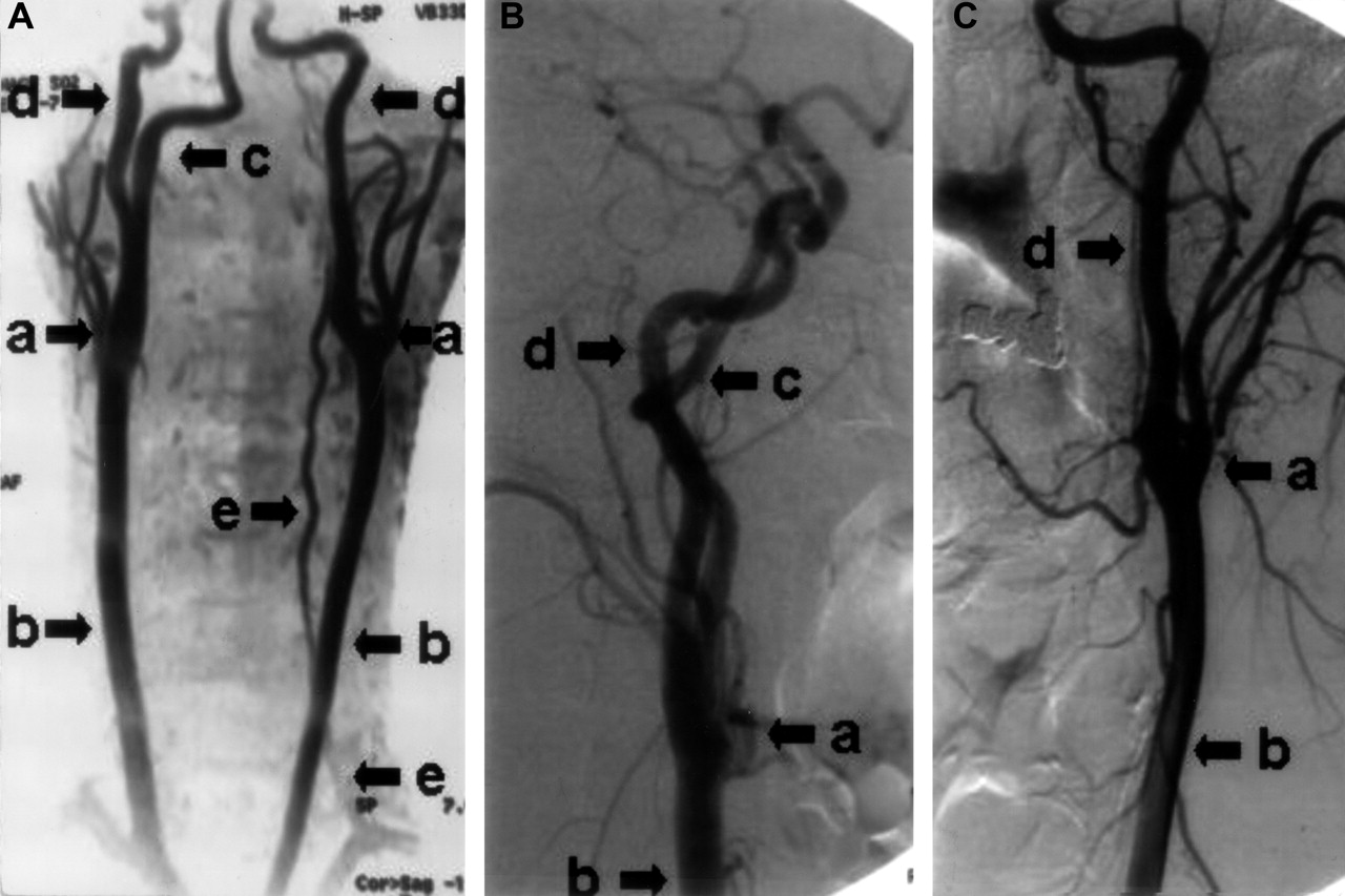 Type I Proatlantal Artery With Bilateral Absence Of The External