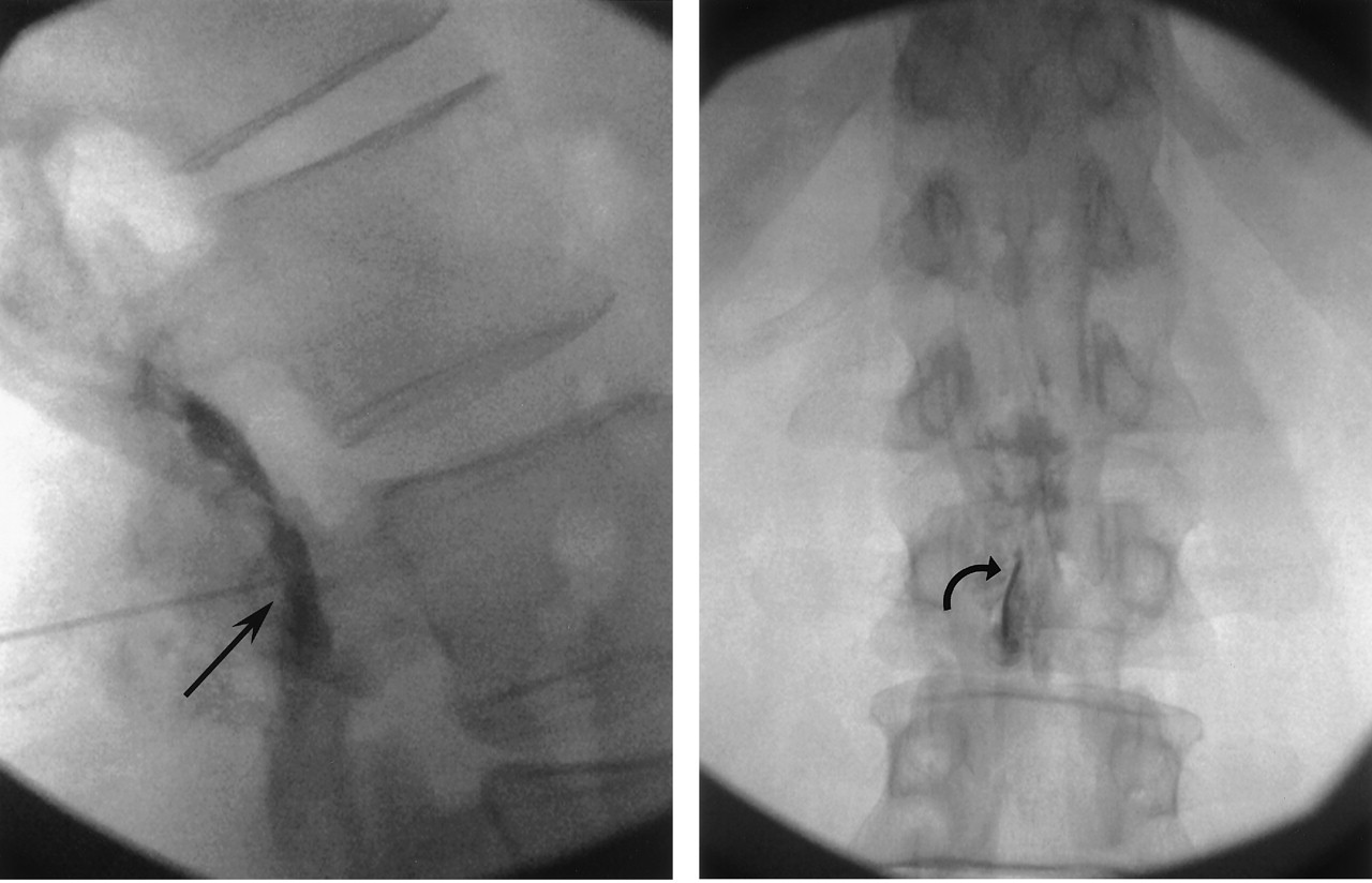 fluoro guided steroid injection