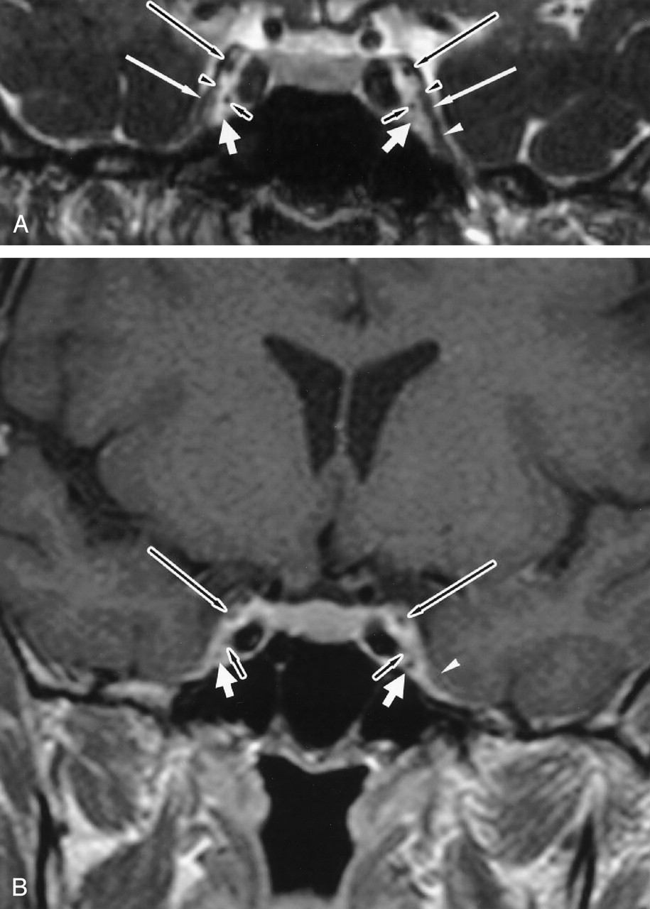 Normal Cranial Nerves In The Cavernous Sinuses Contrast Enhanced