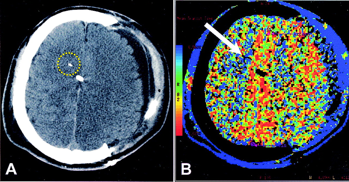 Relationship Between Brain Tissue Oxygen Tension And Ct