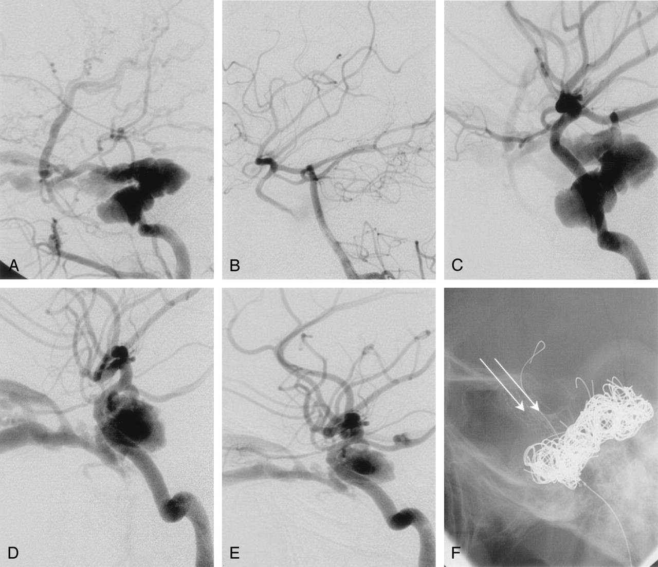 Endovascular Treatment Of High Flow Carotid Cavernous
