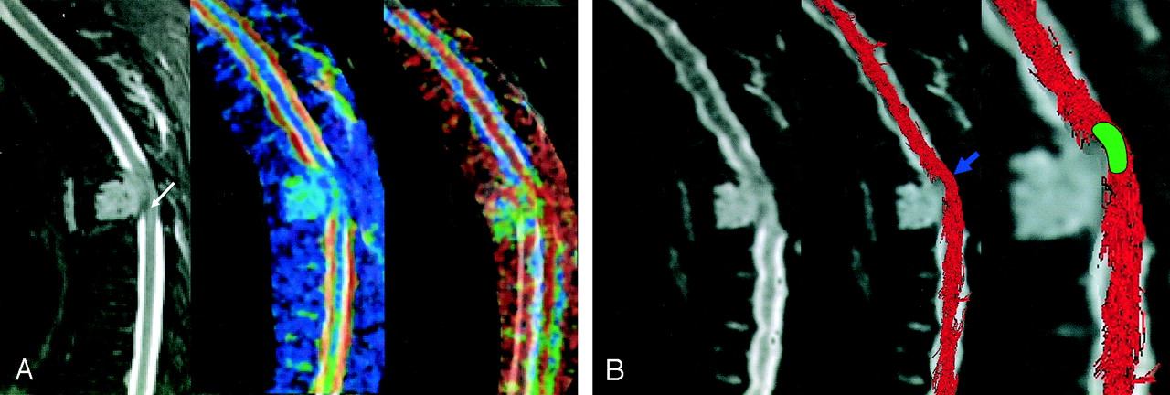 Mr Diffusion Tensor Imaging And Fiber Tracking In Spinal