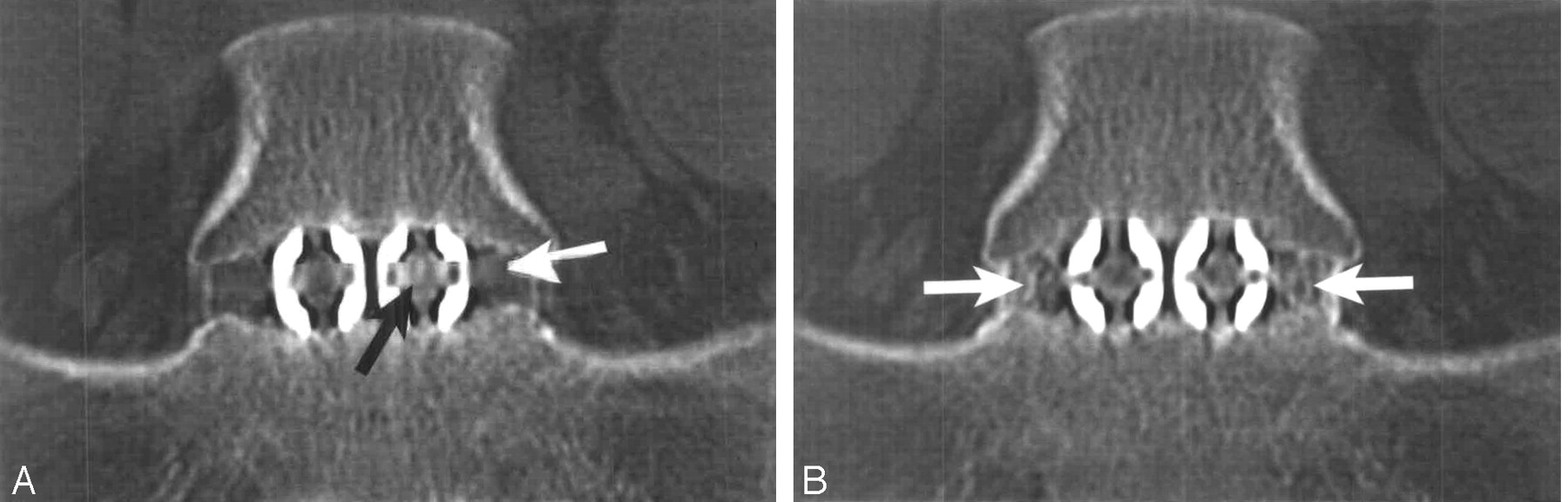 CT Evaluation of Lumbar Interbody Fusion: Current Concepts